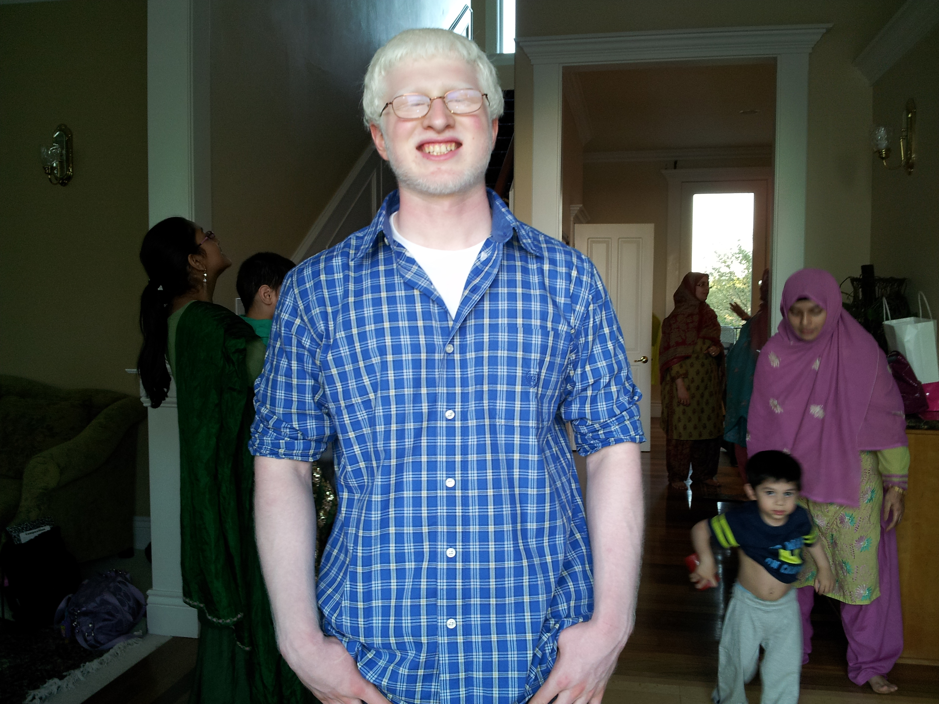 ocutech inc awards scholarship to high school student below in an attempt to increase awareness of the benefit of low vision aids for individuals albinism ocutech the developer of eyeglass mounted telescopic